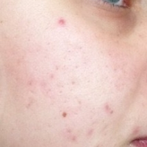 Atrophic scars (acne scars) - by clicking on the picture you will open the gallery